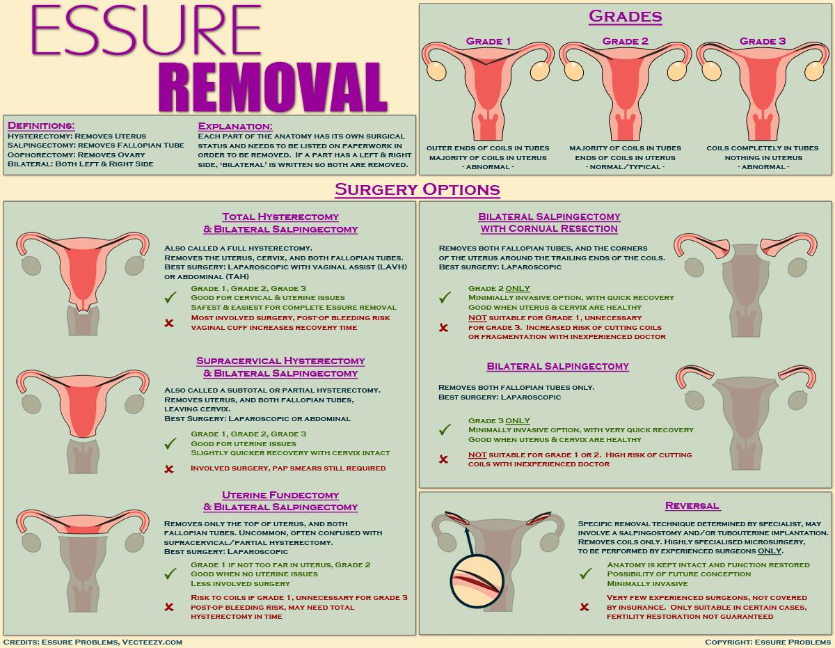 Essure Problems - Essure Removal Information